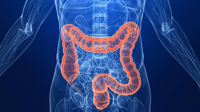 What Is Colorectal Cancer